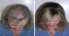 Quest'Olio dalle proprietà magiche, rinforza e nutre i capelli in profondità. Vediamo come prendersi cura dei capelli sfibrati con l'olio di ricino. L'olio di ricino è un…