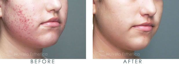 Acne Laser Treatment Before and After -Want pimples and acne gone fast? Try theacnecode.com