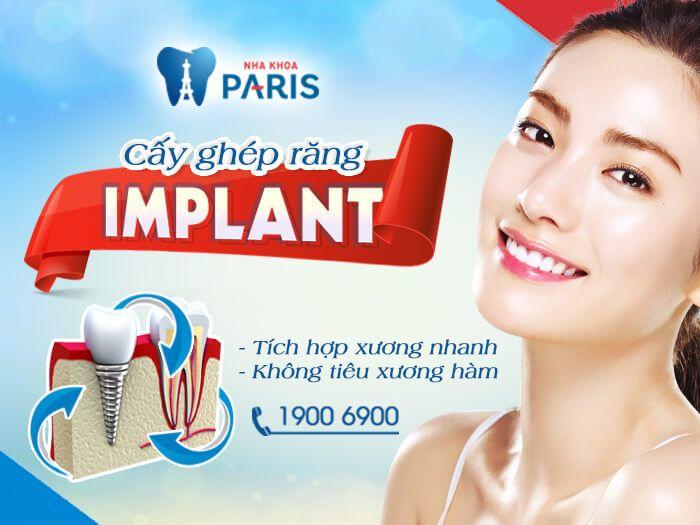 Hiện nay, có hai cách trồng răng khi mất một răng hàm là làm cầu răng và cấy ghép implant nhưng nếu xét về lâu dài thì cấy ghép implant sẽ là phương pháp tối ưu hơn cho dù mức chi phí cao hơn so với làm cầu răng với một số lý do sau đây: