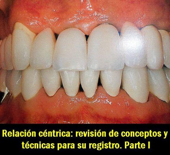 PDF: Relación céntrica: revisión de conceptos y técnicas para su registro. Parte I   OVI Dental