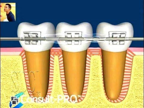 Orthodontic treatment how it works.