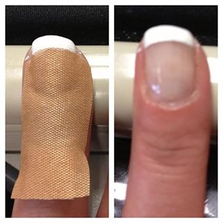 Saw this trick on Pinterest! So I had to try it myself! Cut a round end band aid in half, mold to fingernail, paint 2 coats white, dry and peel off. I used cheaper brand of flexible fabric band aids. And Wah-lah!! Success!