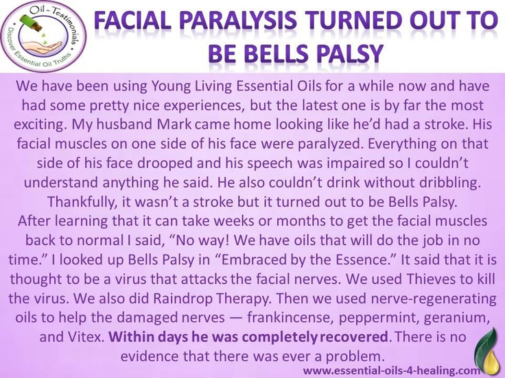 Young Living Frankincense, Geranium, Peppermint, Thieves Essential Oils & Raindrop Technique for Bells Palsy Treatment (Facial Paralysis).
