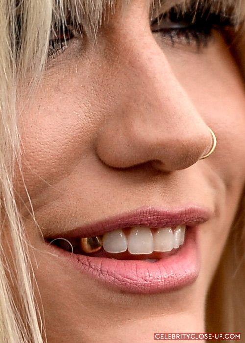 Watson teeth emma without