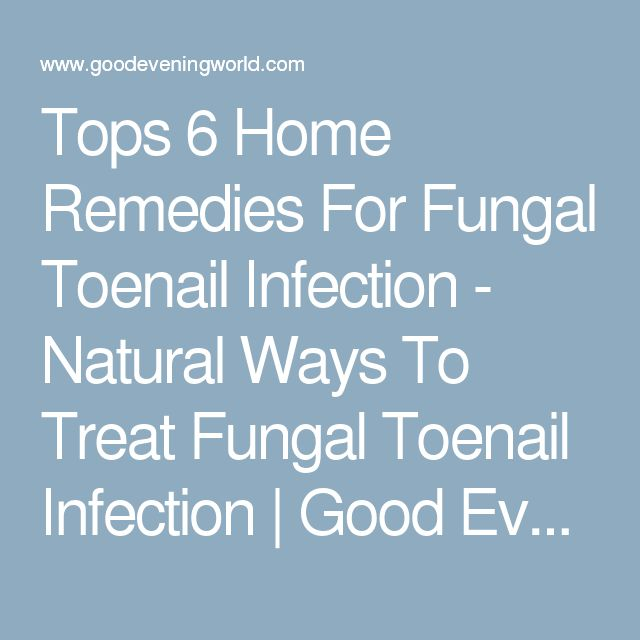 Tops 6 Home Remedies For Fungal Toenail Infection - Natural Ways To Treat Fungal Toenail Infection | Good Evening World