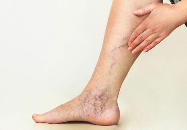 de ce se întâmplă venele varicoase pe picioare