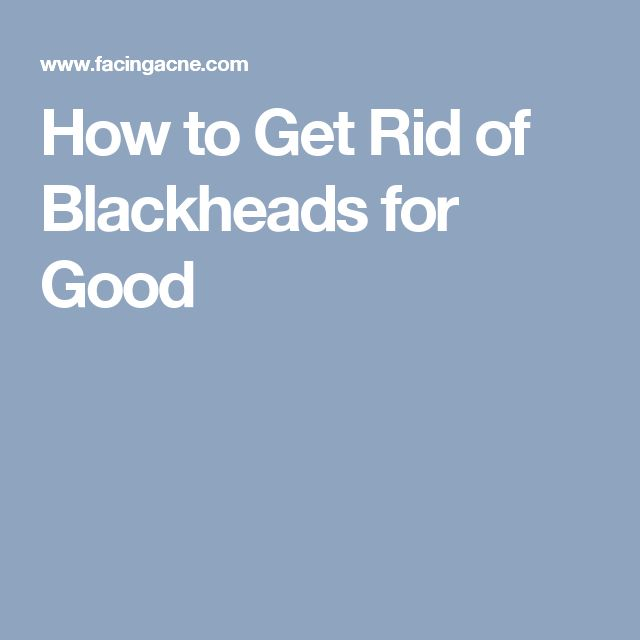 How to Get Rid of Blackheads for Good