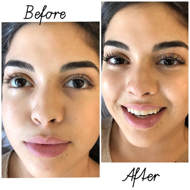 Yumi Lash Lifting before & after