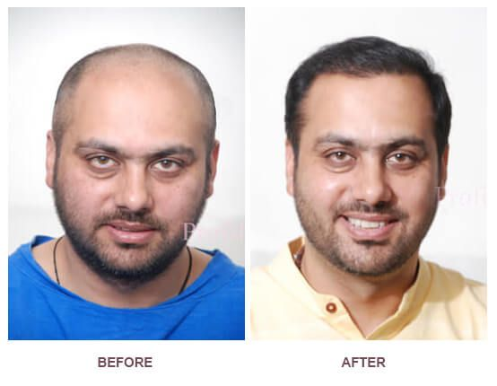 Want to know about the best hair transplant centre in India. Click on http://profilehaircentre.jigsy.com/entries/general/where-to-have-the-best-hair-transplant-in-india
