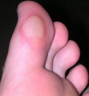 How to treat an intact blister - image credit