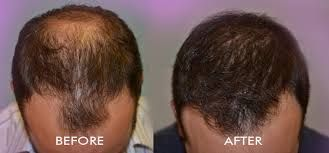 Hair transplant cost in India is reasonable than other western countries and those people who suffering from excessive baldness problem are turning towards India to get the best treatment at affordable cost and best Indian hair transplant surgeon attempt a number of best hair transplant surgeries than other abroad countries.