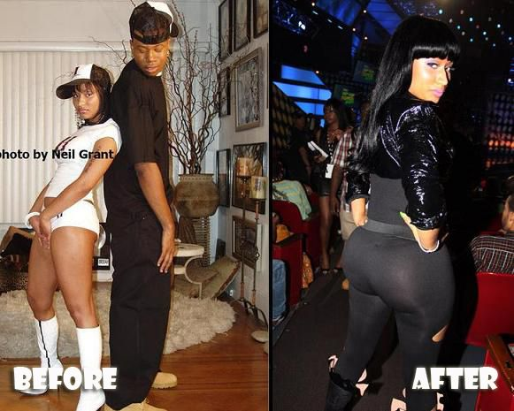 Nicki Minaj Before And After Butt Implants