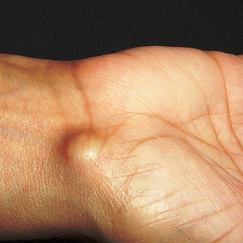 Natural Treatment For Ganglion Cyst Doterra