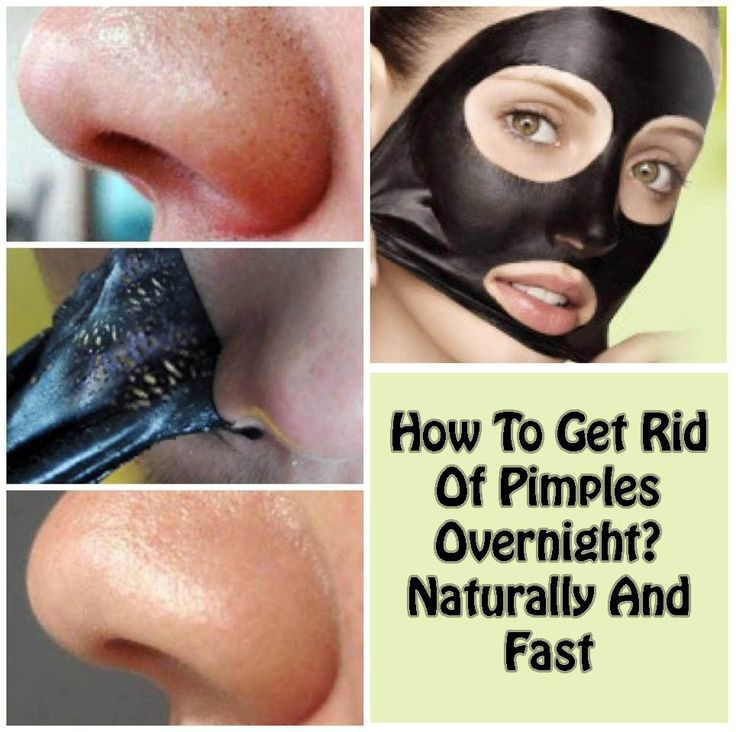 This article will tell you the ways to get rid of pimples overnight and fast with home remedies. Waking up fresh in the morning after long night's sound sleep makes one feel happy and think positive about the day ahead. But, if you stand before the mirror and a red, hot and swollen pimples on