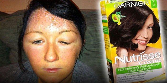 Van Groot-Brittannië 'The Daily Mail': Haarverf wordt door miljoenen vrouwen gebruikt, maar bevatten chemische stoffen die in verband worden gebracht met kanker, 'waarschuwen Britse wetenschappers.…