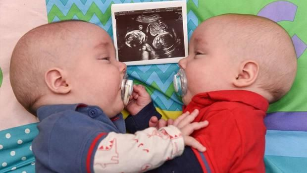Gemelos unidos por su vida se dan las manos dentro de su madre.