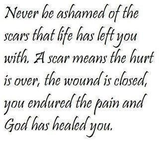 SCARSRemember This, God, Life, Inspiration, Wisdom, Scars, Favorite Quotes, Healing, Living