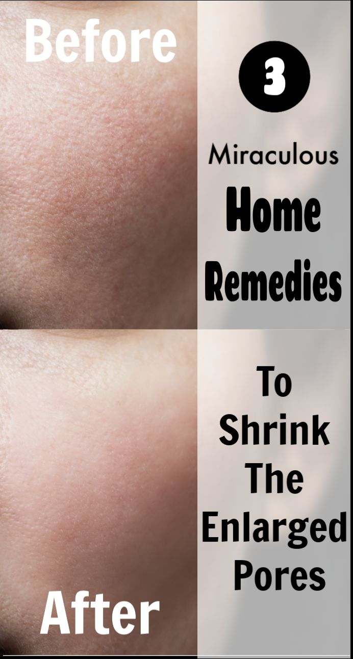 3 Miraculous Home Remedies to Shrink the Enlarged Pores
