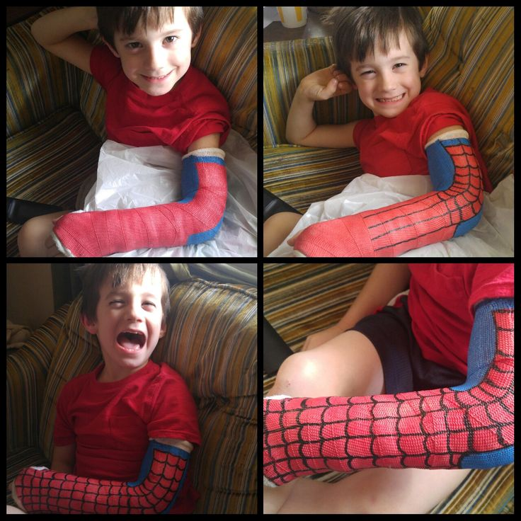 Spiderman cast for broken arm.  Paint pens from Michael's do the job.