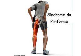 Síndrome do Piriforme e o Tratamento de Quiropraxia
