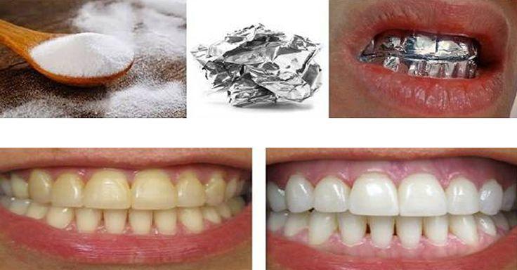Chcete mít dokonale bílý chrup a nechcete chodit po zubařích, aby Vám jej vybílil? Pravidelné čištění zubů k dokonalým bílým perličkám nestačí, to ví asi každý. Dokonale zářivé úsměvy můžeme vídat pouze v reklamách na zubní pasty. Babské recepty ale… Continue Reading →