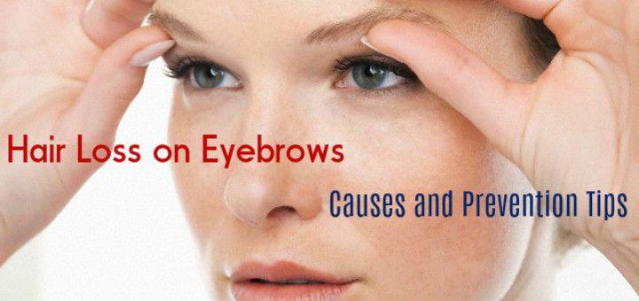 causes of facial hair loss