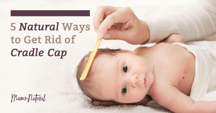 The 25 Best Cradle Cap Ideas On Pinterest Baby Health