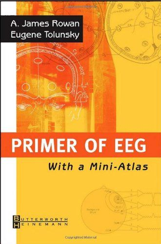 Primer of EEG: With A Mini-Atlas, 1e by A. James Rowan MD http://www.amazon.com/dp/0750674768/ref=cm_sw_r_pi_dp_Uq7tvb0T6R176