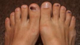 ¿Por qué tengo las uñas de los pies negras? - Cachicha.com