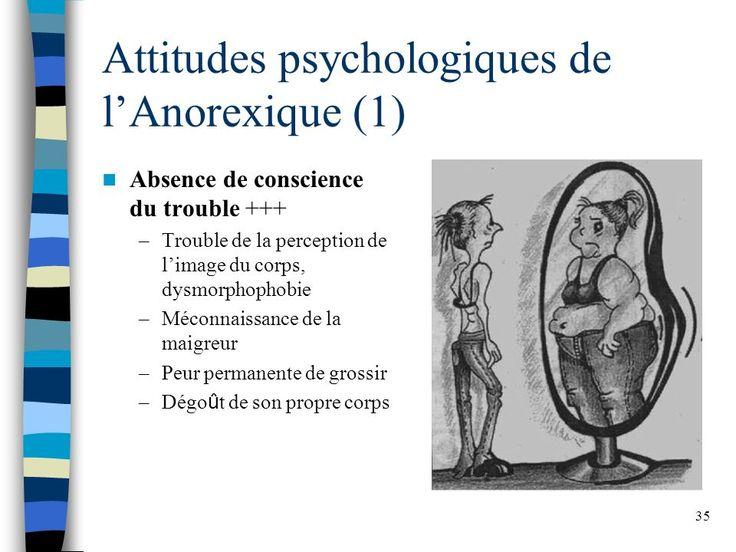 """Résultat de recherche d'images pour """"dysmorphophobie anorexie"""""""