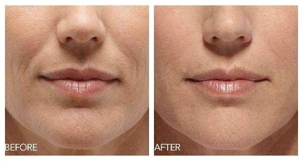 how to avoid wrinkles near eyes