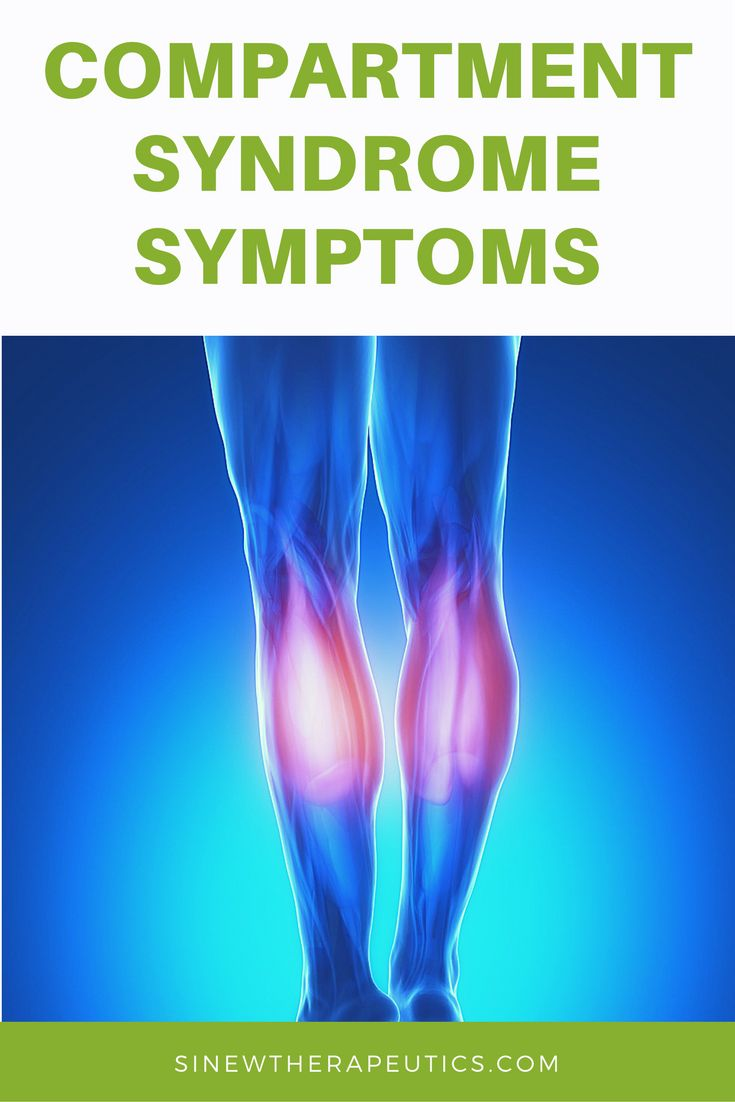 Common symptoms of Compartment Syndrome are swelling, redness, pain, stiffness and weakness. Get fast pain relief and recovery by following our treatment guide based on if you have acute or chronic stage symptoms.