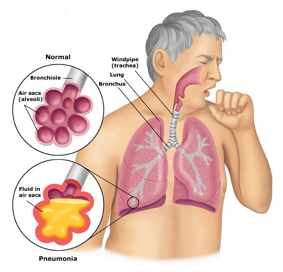 Recognizing The Different Types Of Pneumonia