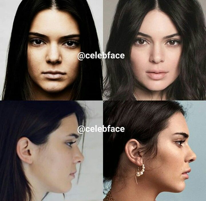 I See Lip Injection Brow Lift Nose Job Chin Implant Filler Come On In 2020 Kendall Jenner Plastic Surgery Chin Implant Nose Job