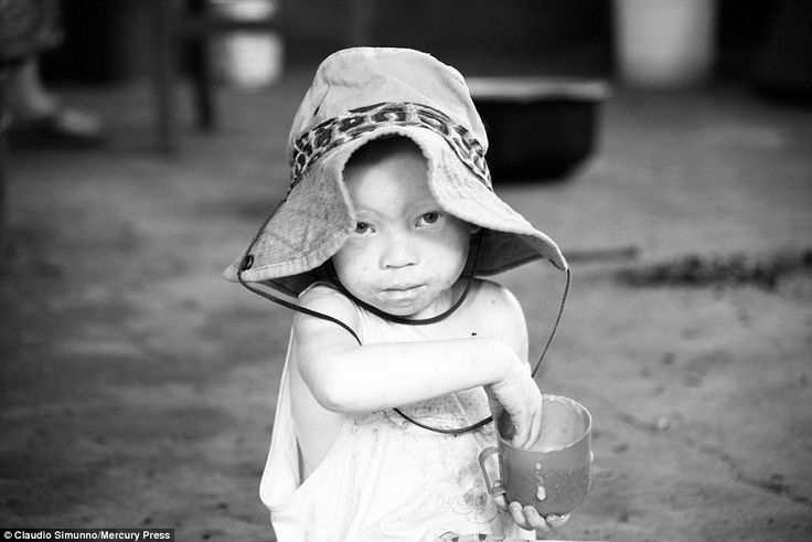 A young albino child, photographed at one of the retreats set up to protect the community,...