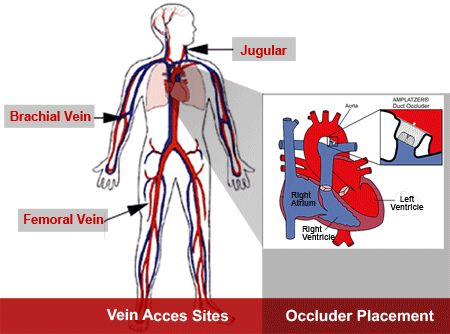 patent ductus arteriosus in adults | Non-Surgical Patent Ductus — School of…
