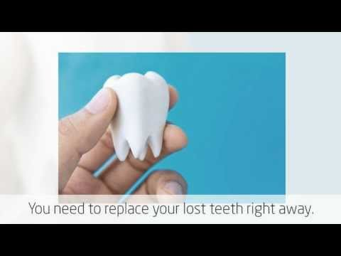 Dental Implants in Campbelltown Visit us on http://www.campbelltowndentalcare.com.au