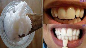 Dites adieu à la mauvaise haleine, la plaque, le tartre et éliminez les bactéries nocives dans votre bouche avec un seul ingrédient !