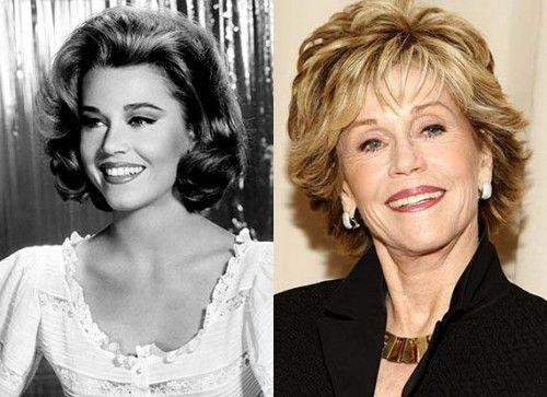 Jane Fonda Plastic Surgery1 500x363 Jane Fonda Plastic Surgery Before and After Photos