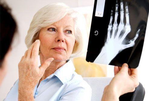 Rheumatoid Arthritis, A Few Facts - PositiveMed