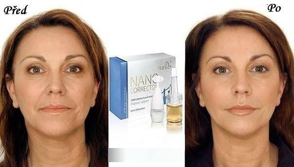 Popis: Použitie lieku vylučuje potrebu operatívneho vypnutia tváre a kolagénových injekcií. Dodáva spodným vrstvám kože kolagén, aktivuje syntézu vlastných kolagénových vlákien, obnovuje pružnosť pokožky a presný ovál tváre.   Použitie: Omladzujúce účinky sú viditeľné po siedmich dňoch: pružná koža, viditeľné vypnuté obrysy tváre. Komplex obsahuje 2 prostriedky: obnovujúci mezokoktejl (kolagénový peptid, β-glukán (Beta-glukán), glukosamín, hyalurónovú kyselinu a kolagén v mikrokapsuliach.