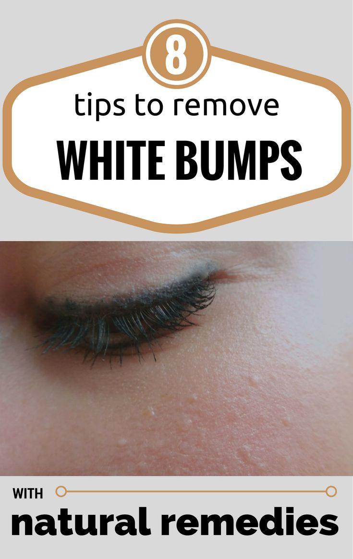 Beauty Tips: Natural Face Saving Remedies – Gossip Hubb