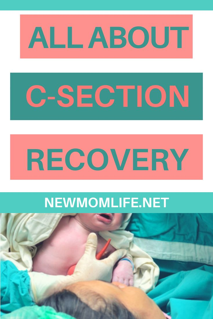 Recovering From A C-Section | C section recovery, C ...