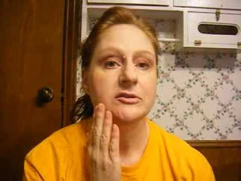 Post-Botox for Synkinesis after Bell's Palsy.......just one more reason I need Botox