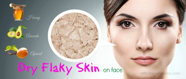 How to treat dry flaky skin on face naturally? Here are top 30 useful remedies to cure the problem effectively at home.