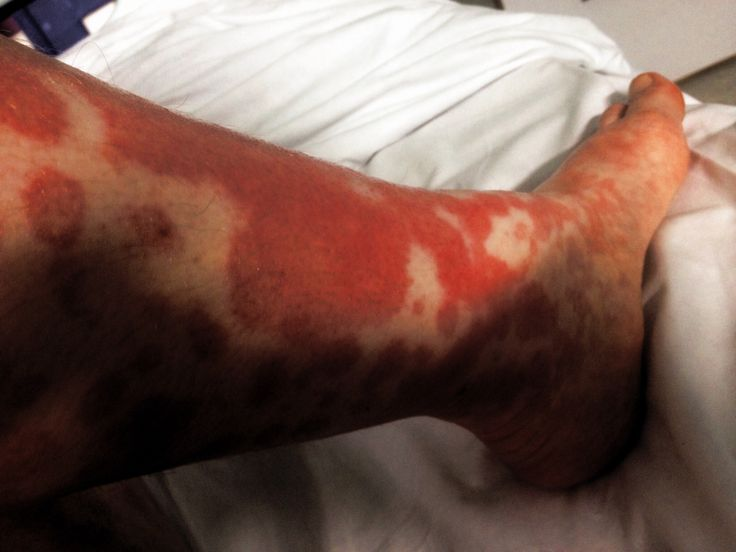 Erythema multiforme major - RightDiagnosis.com