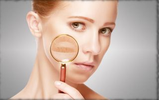 Adult Acne: Why You Get It, How to Fight It