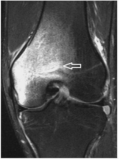 A bone bruise in the knee (an MRI image). Symptoms, diagnosis and treatment of bone bruises http://ehealthstar.com/conditions/bruised-bone