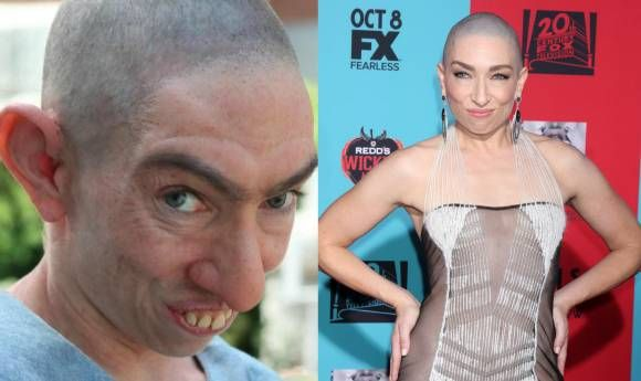 Naomi Grossman is pinhead Pepper once more, transforming her face with various prosthetics. | American Horror Story: Freak Show