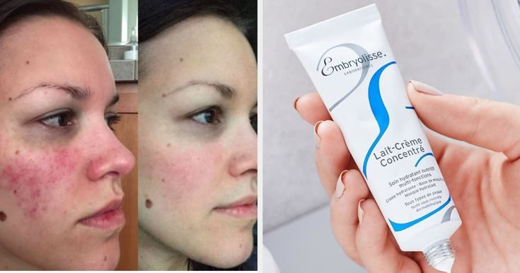 14 Of The best Lightweight Moisturizers You Can Get On Amazon